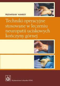 Techniki operacyjne stosowane w leczeniu neuropatii uciskowych kończyny górnej.