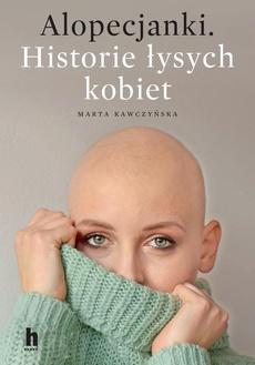 Alopecjanki