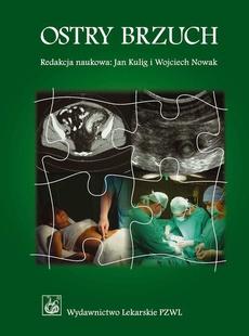Ostry brzuch. Podręcznik dla lekarzy i studentów