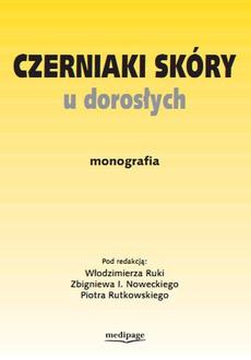 Czerniaki skóry u dorosłych. Monografia