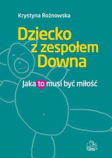 Dziecko z zespołem Downa. Jaka to musi być miłość