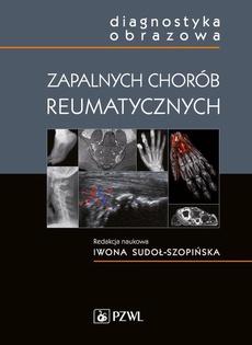 Diagnostyka obrazowa zapalnych chorób reumatycznych