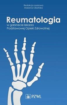 Reumatologia w gabinecie lekarza Podstawowej Opieki Zdrowotnej